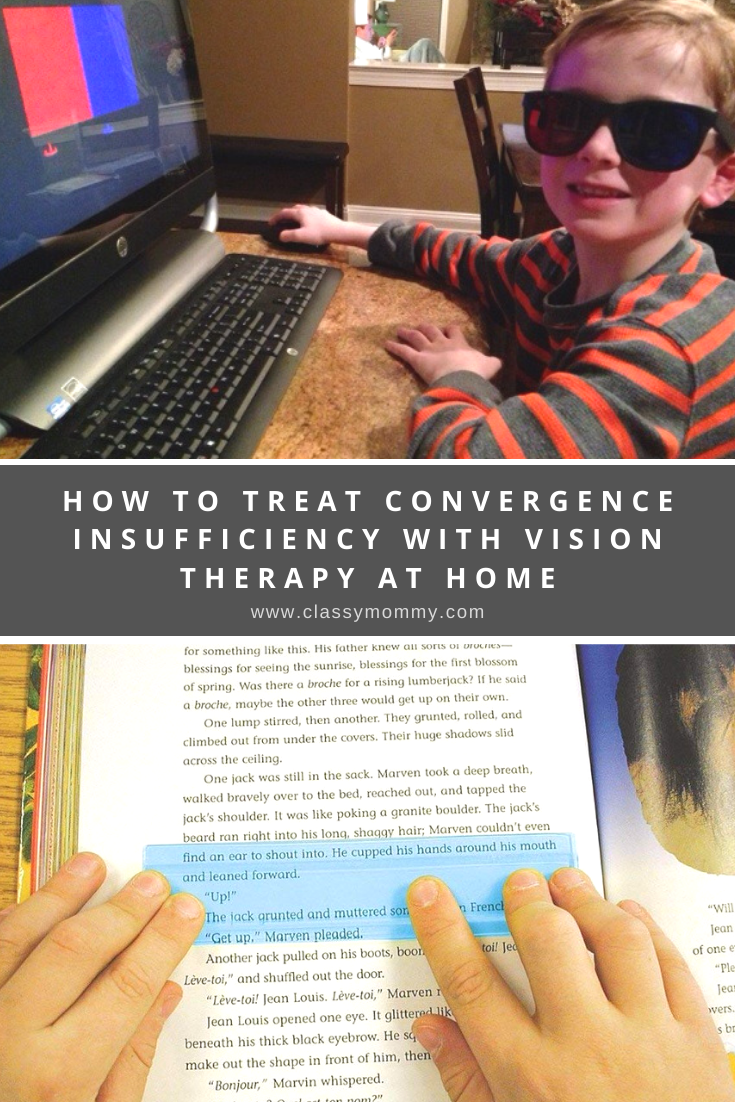 How to Treat Convergence Insufficiency with Vision Therapy